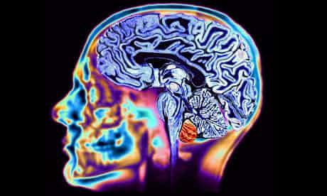 Brain460